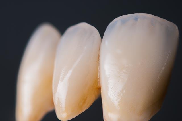 Zirconio. La innovación de la estética dental.